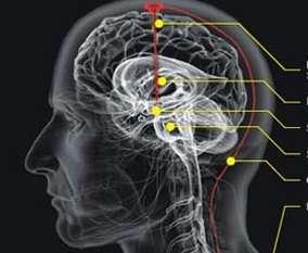 Otak Bodoh Akibat Makanan dan Minuman