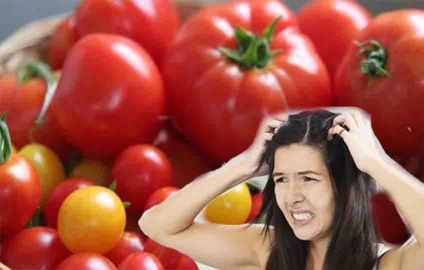 Manfaat Ampuh Tomat Untuk Usir Ketombe